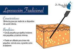 liposuccion-tradicional