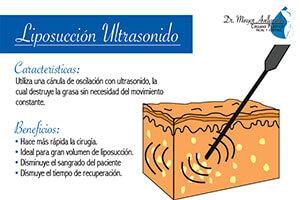 liposuccion-ultrasonido