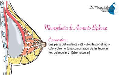 mamoplastia-de-aumento-biplanar