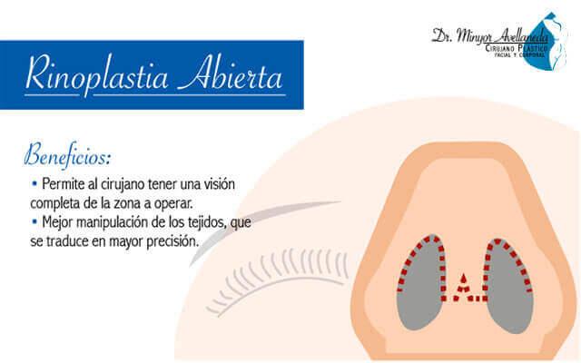 rinoplastia-abierta