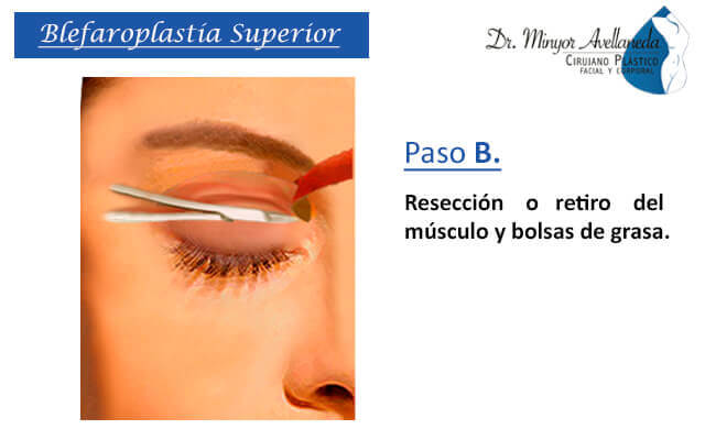 Liposucción asistida por ultrasonido en Bogotá - Dr. Minyor Avellaneda